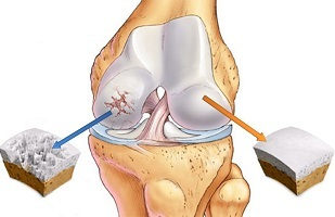 what is osteoarthritis of the knee